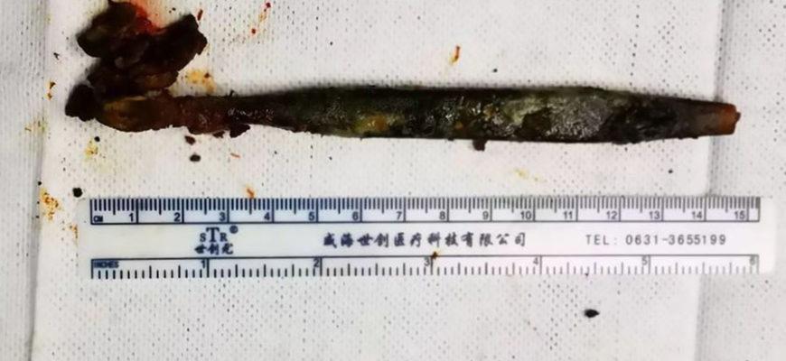 В Китае врачи извлекли из кишечника пациента зубную щетку, которую он проглотил 20 лет назад