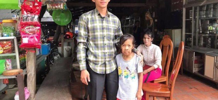 Девочка родилась с лицом пожилой женщины из-за редкой болезни