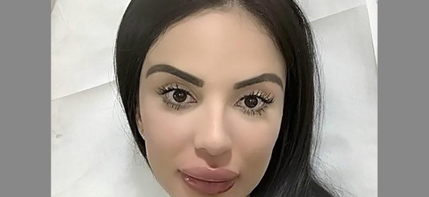Девушка потратила полмиллиона долларов на внешность Кардашьян и испортила лицо