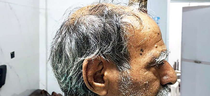 В Индии мужчине удалили с головы десятисантиметровый «дьявольский» рог