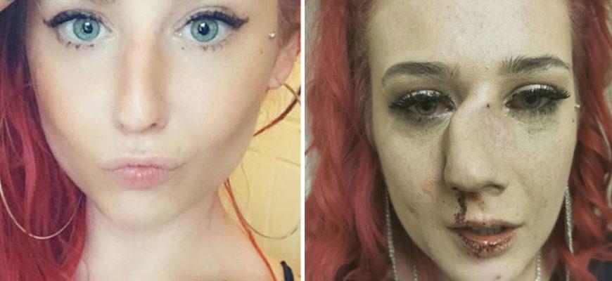 Участницу конкурса красоты в Великобритании изуродовали сразу после шоу