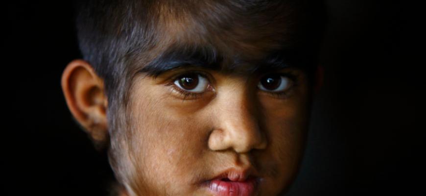 Дети стали похожи на оборотней из-за редкого заболевания