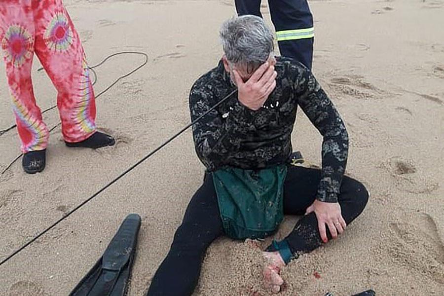 Рыбак прострелил голову из подводного ружья и остался жив