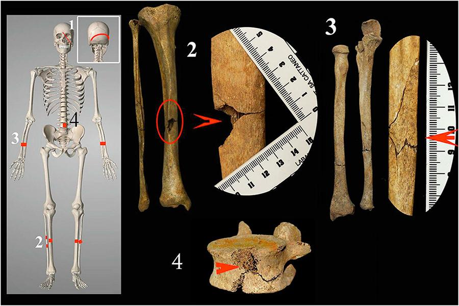 Археологи из Италии нашли свидетельства одной из самых жестоких пыток в истории