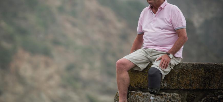 Мужчина лишился ноги из-за мозоля от новых сандалий