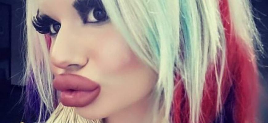 Женщина втрое увеличила размер губ, чтобы быть более модной