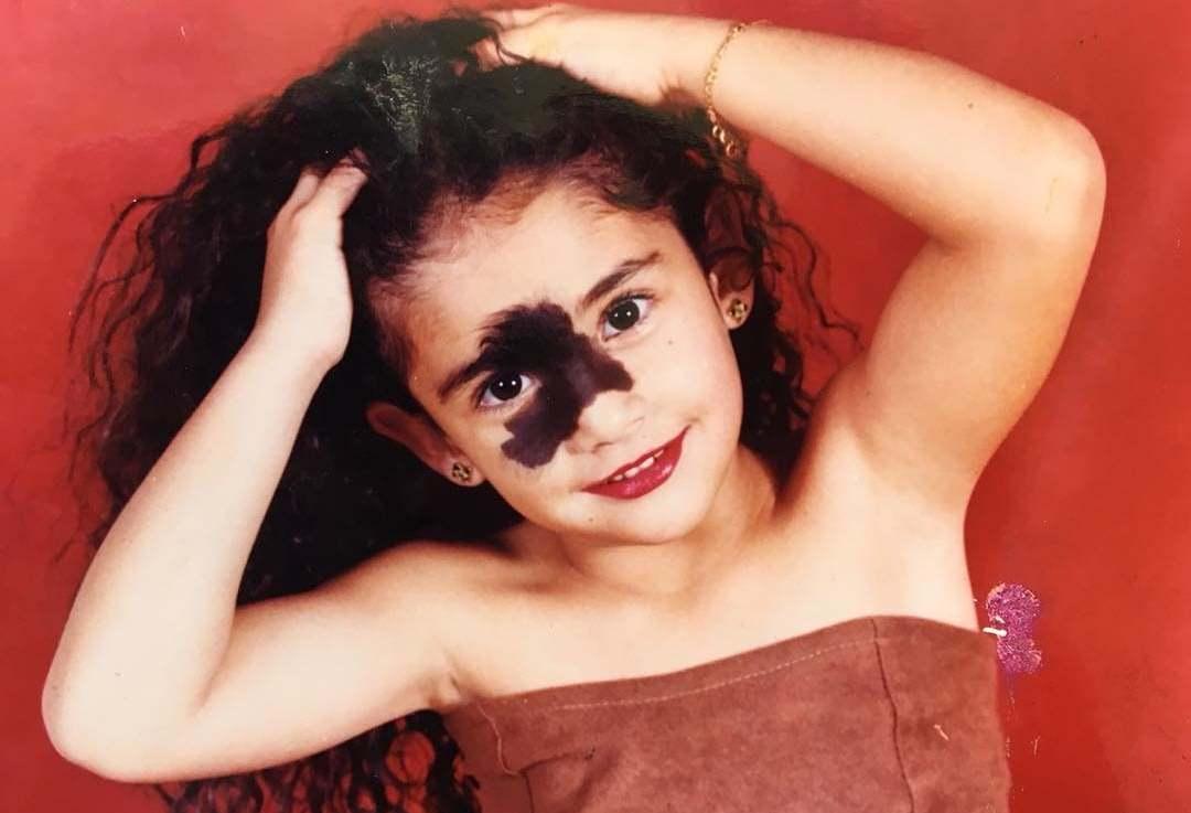 Девочка с пятном на лице