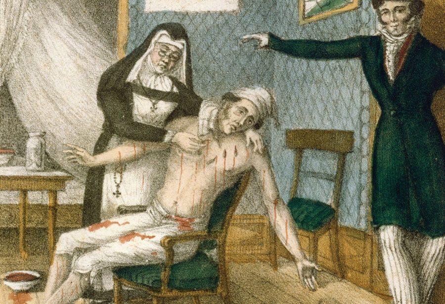 Кровавая медицина в средневековье