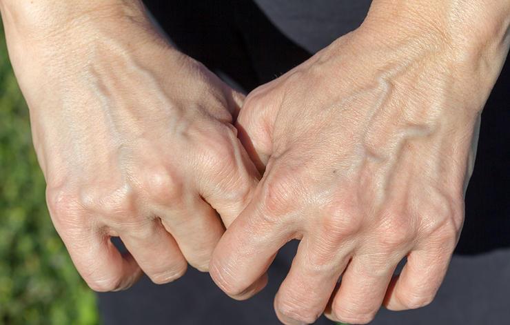 Голубые вены на руках